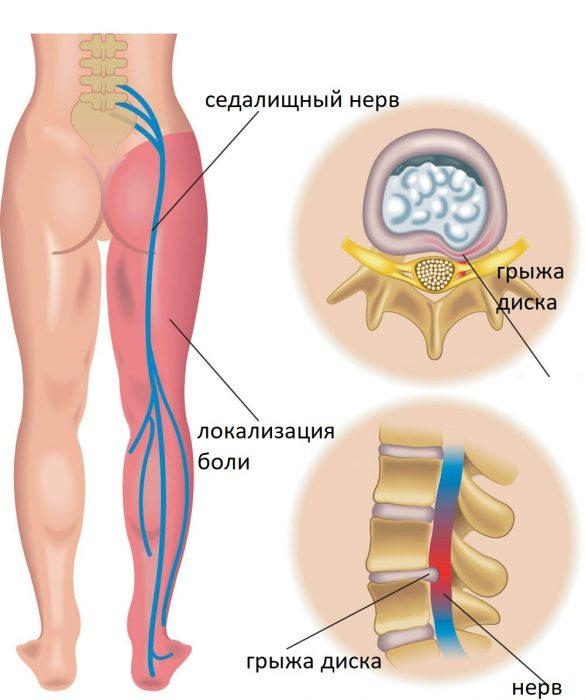 Причина защемления нерва